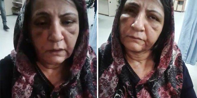Annesini döven oğul tutuklandı