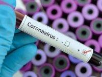Sevindiren haber Rusya'dan geldi: Koronavirüs ilacı