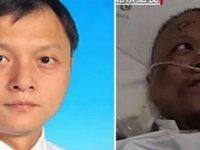 Virüse yakalanan ve rengi değişen Çinli doktor Covid-19'dan öldü