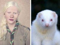 Albino nedir?