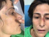 Eşini darbederek kemiklerini kıran doktora hapis cezası